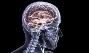 clipart, brain in a skull